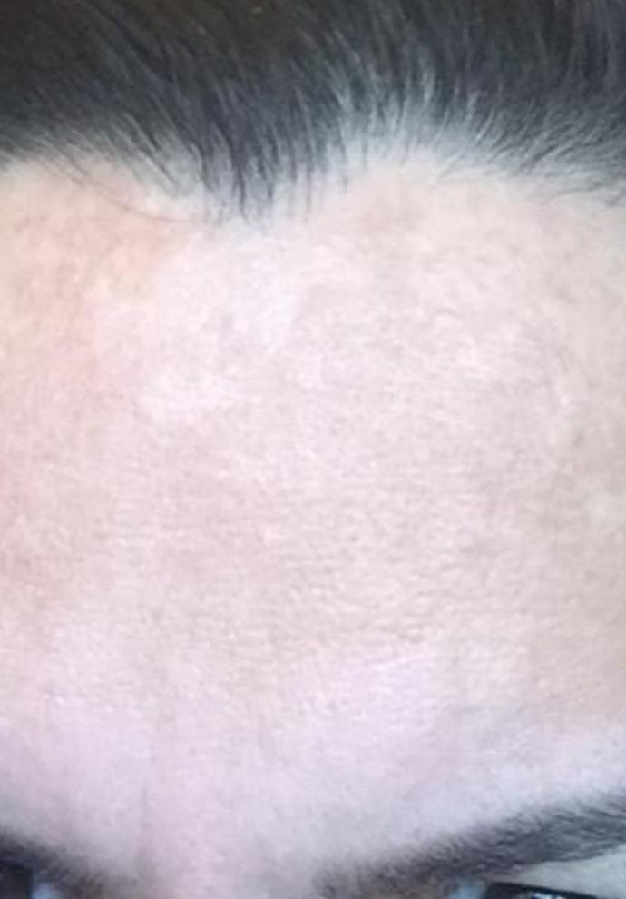 After-Pigmentatie