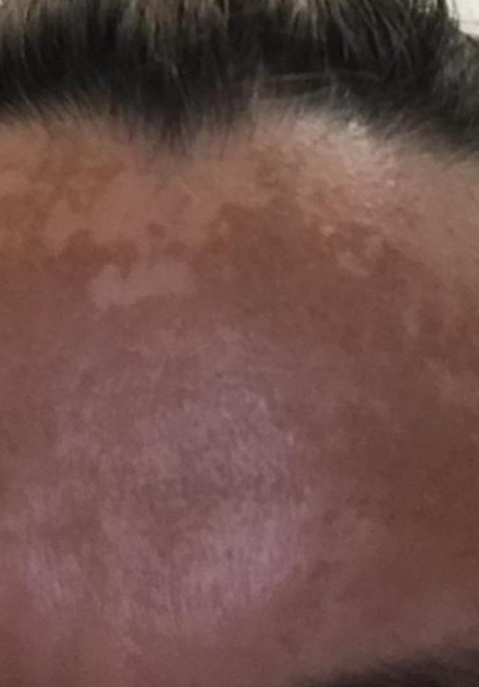 Before-Pigmentatie